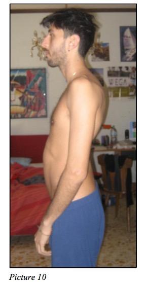 posture dental height