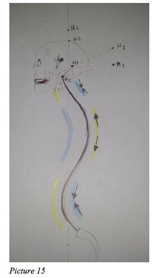 spine correction asymmetry