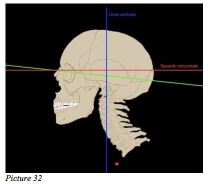dental height
