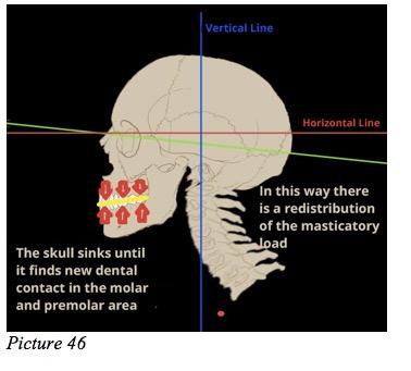dental skull