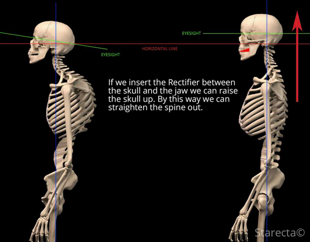 body-posture-teeth