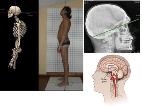 body-unbalanced-skull