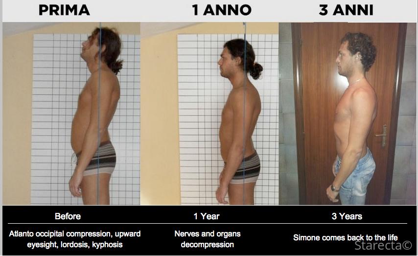 evolution starecta posture