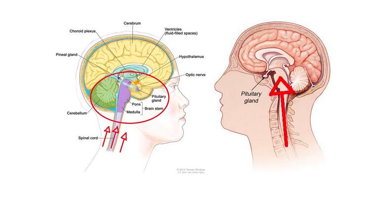 pitutary-gland-unbalanced-body