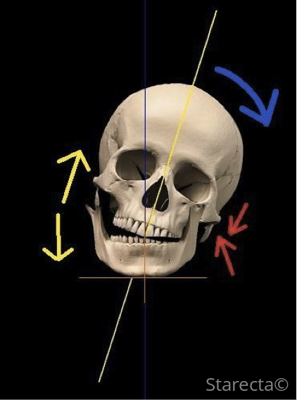 skull-falling-down2