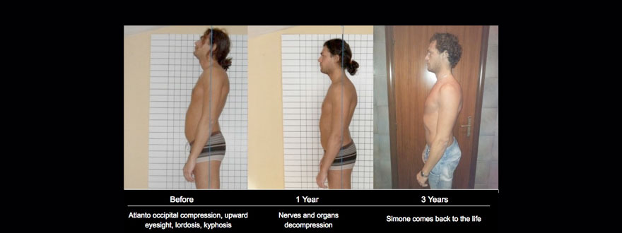 lumbar lordosis biomechanical method